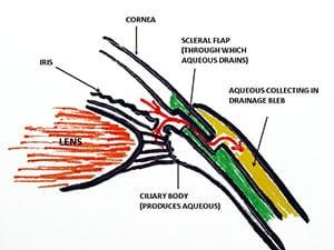 gla-diagram